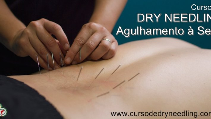 Curso: Dry Needling – Agulhamento a Seco